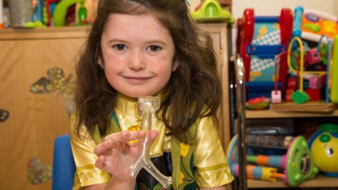 3D-печатная трахея помогает девочке дышать