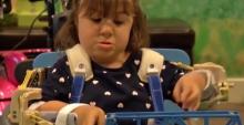 3D принтер вернул 4-летней Ханне руки
