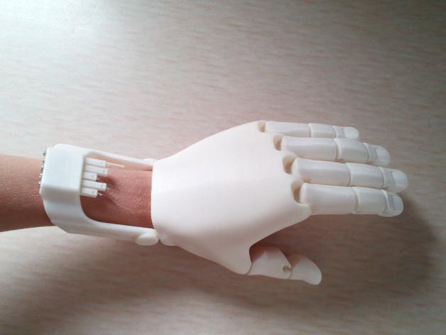 5-летний мальчик стал первым потерпевшим от ожогов в Китае, получившим 3D-печатную руку