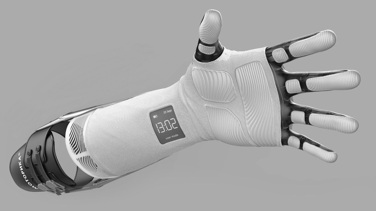 Bionic arm prosthesis Stradivari: characteristics and prospects of 3D printing development
