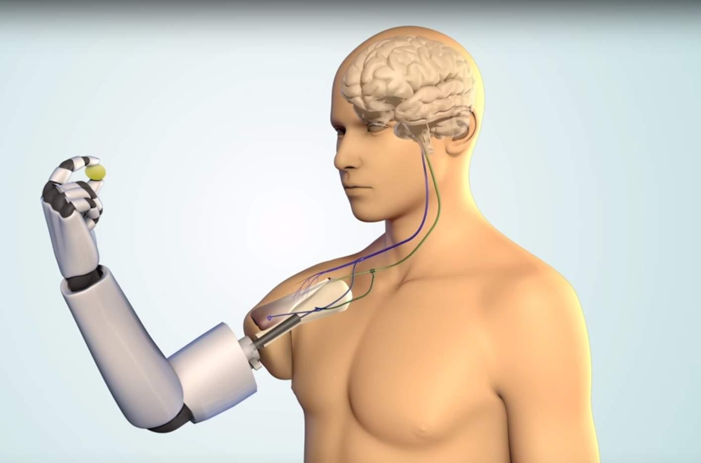 Благодаря бионическому протезу с 3D-печатными чипами человек сможет ощущать прикосновения