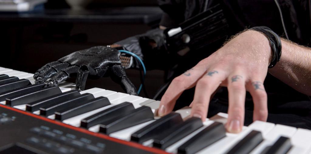 Cоздан чувствительный протез руки с контролем отдельных пальцев