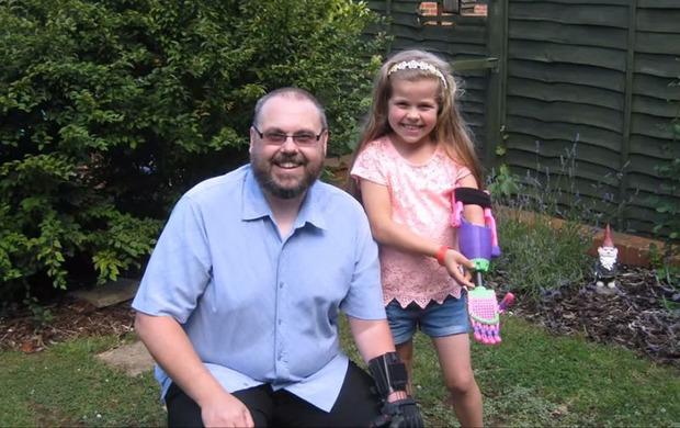 Дизайнер без руки создал 3D-печатный протез для 8-летней девочки
