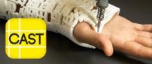 Дизайнеры напечатали шину для лечения переломов, собранную из сообщений близких людей