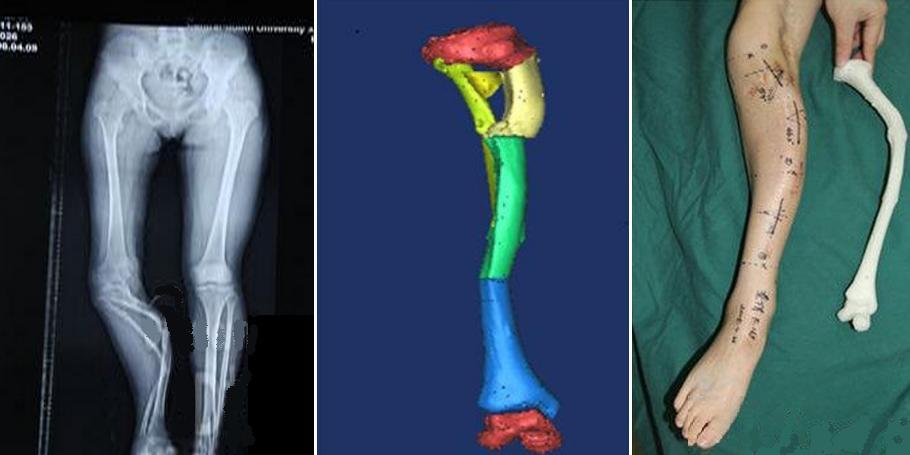 Хирурги прибегли к помощи 3D-печати, чтобы выпрямить искривленную ногу пациентки