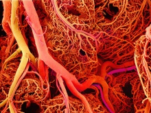 Scientists use 3D printing to build better blood vessels