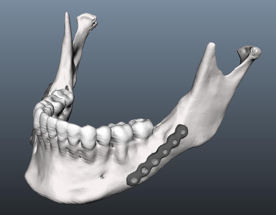 Как 3D-печать помогает восстанавливать челюсть после удаления опухоли
