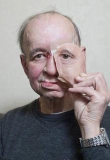 Как 3D печать спасла лицо