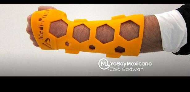 Мексиканские разработчики создали более удобную альтернативу гипсу
