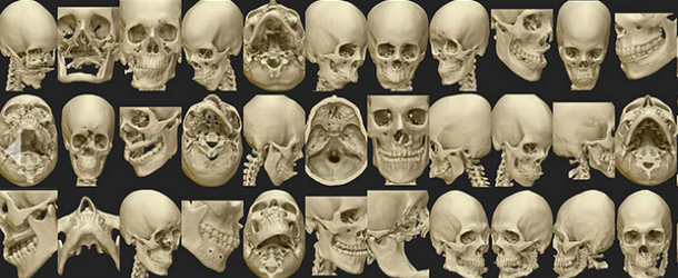 Osteo3D запускает онлайн-репозиторий медицинских моделей для 3D-печати