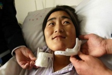 First 3D printed lower jaw implant in China