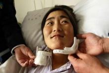 Первый 3D-печатный имплантат нижней челюсти в Китае