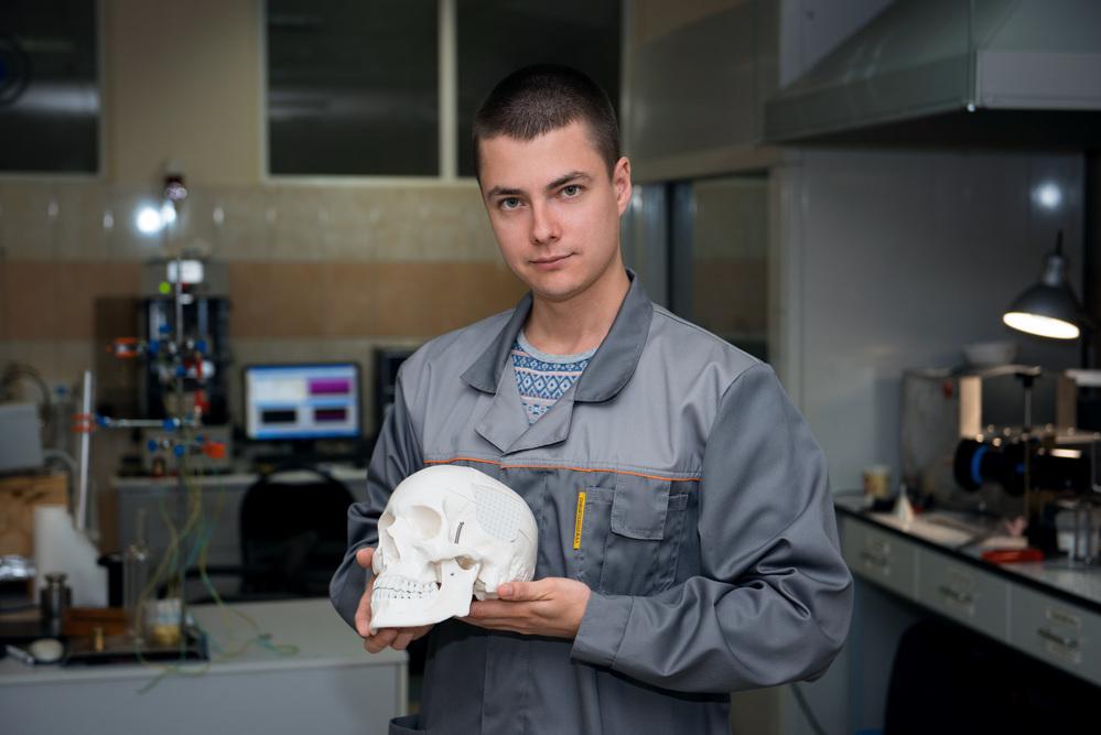 Российские учёные напечатали костные имплантаты, которые фиксируются без крепежей
