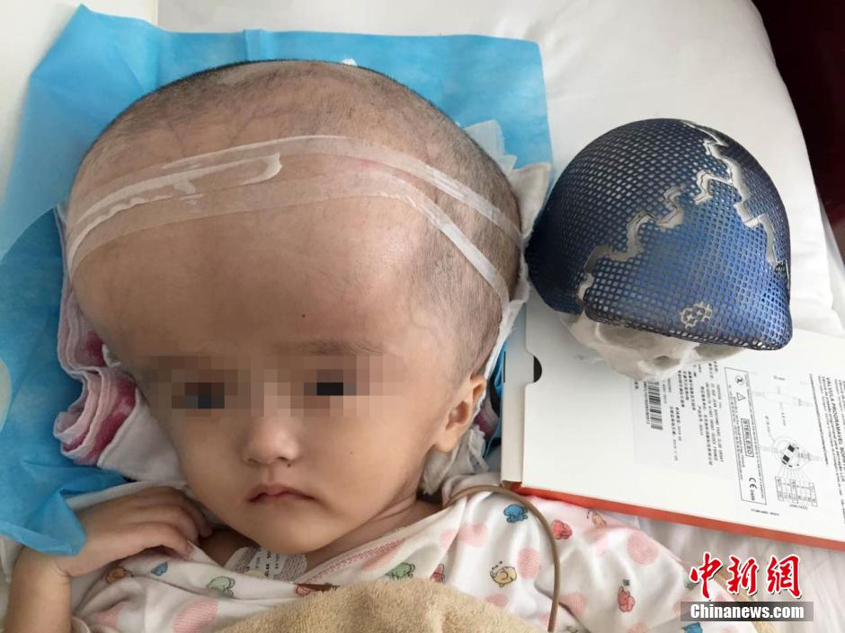 3-year-old whose head was four times normal size receives 3D printed skull and brain shrinkage surgery