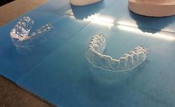 Студент напечатал зубные скобы на принтере