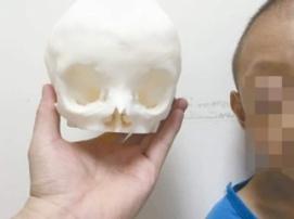 3D-печать помогла провести уникальную операцию по исправлению формы черепа