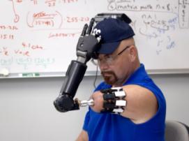 Американец, потерявший руку из-за рака, овладевает бионическим протезом