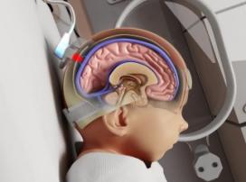 Мониторинг насыщенности крови кислородом спасет младенцев от церебрального паралича