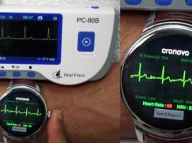 На Kickstarter ведется сбор средств на часы, отображающие ЭКГ