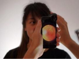 oDocs Eye Care превратила камеру iPhone в офтальмоскоп