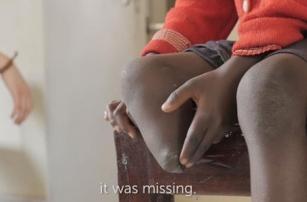 Протезы для детей Уганды будут печатать на 3D-принтере