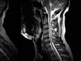 Zebra AI1: один долар – і ваш діагноз готовий!