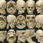 Osteo3D Releases Online Repository of Medical Models for 3D Printing