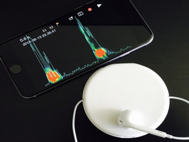 3D-печатный девайс Hummingdoc Flip делает из смартфона стетоскоп