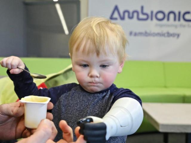 Ambionics запатентовала разработку гидравлических протезов для младенцев