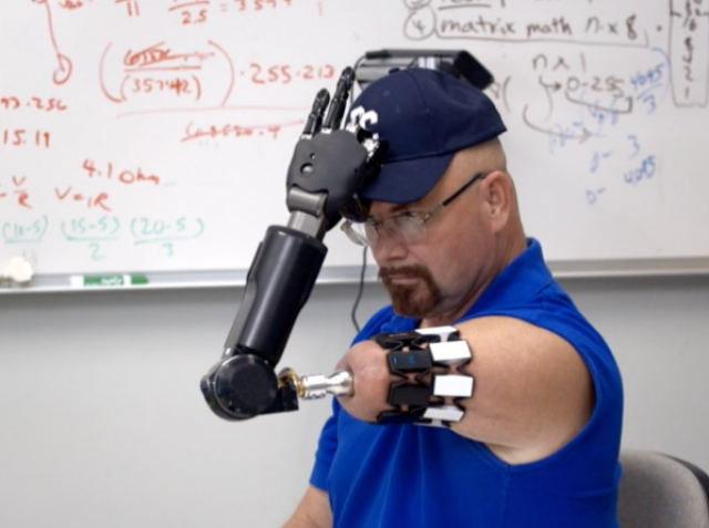 Американець, втративши руку через рак, опановує біонічний протез