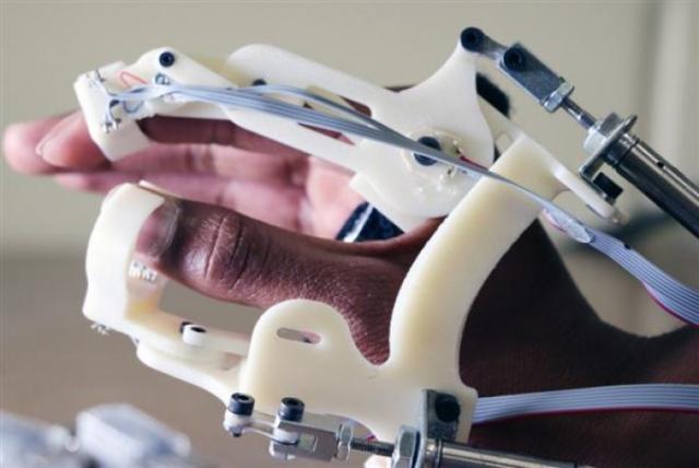 Американские учёные создают 3D-печатную перчатку, которая распознаёт ДЦП у младенцев