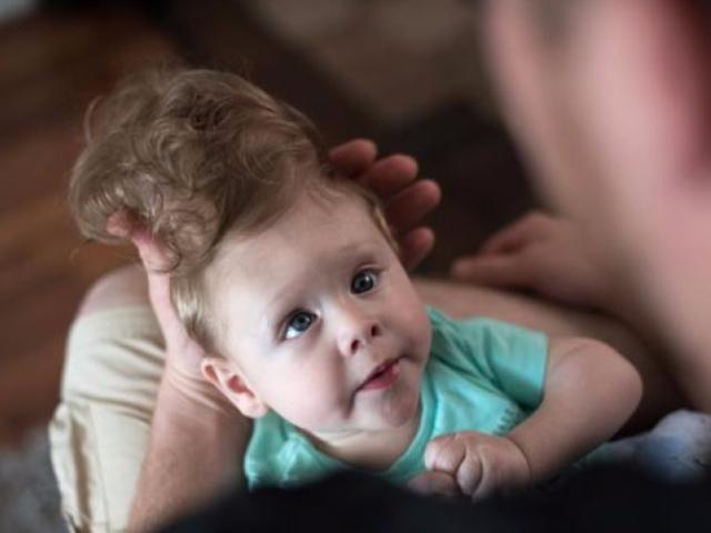 Американские врачи с помощью 3D-печати спасли жизнь младенца, мозг которого выходил за границы черепа