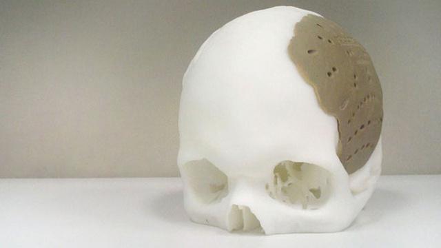 Что вам распечатать? Примеры использования 3D-печати в медицине