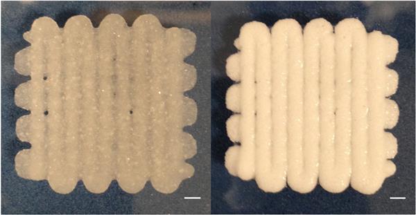 """Это 3D-печатное """"тесто"""" поможет восстановить сломанные кости"""