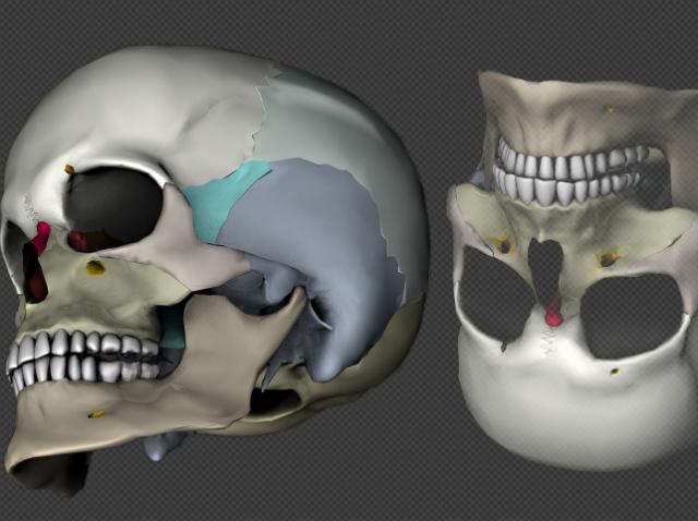 Ирландские учёные разработали технологию 3D-биопечати хрящевых имплантатов