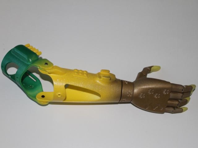 Компания «Моторика» создала 3D-печатный протез по дизайну пациентки