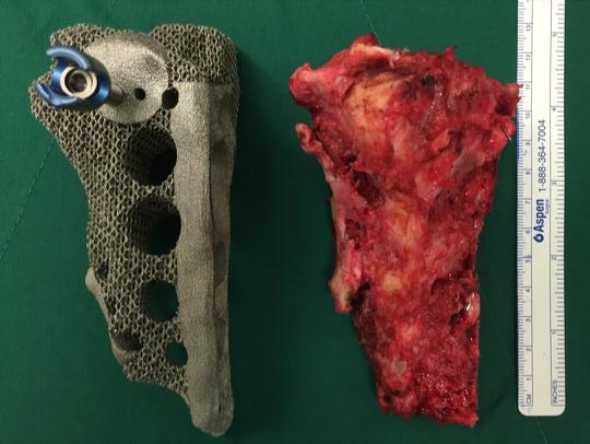 Корейские врачи успешно имплантировали 3D-печатный таз