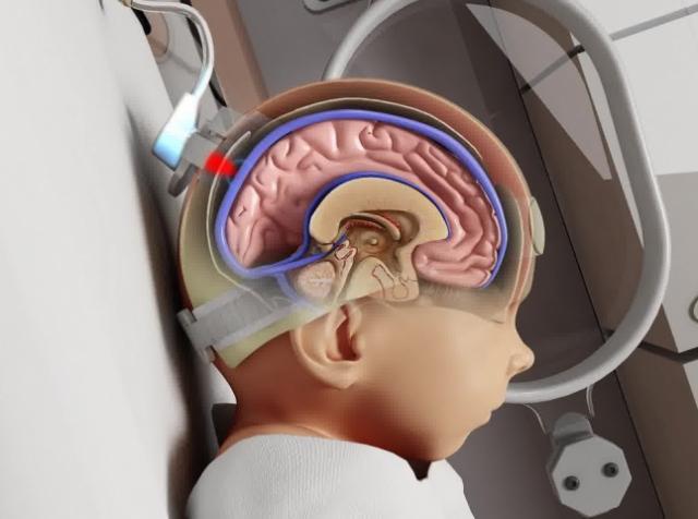 Моніторинг насиченості крові киснем врятує немовлят від церебрального паралічу