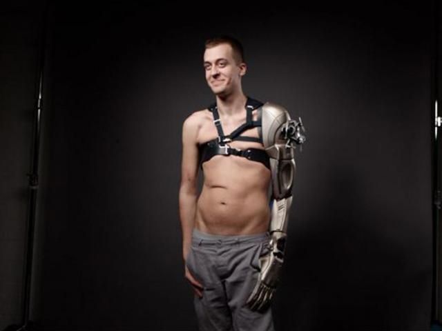 Недавно был презентован новый протез The Phantom Limb Project по мотивам Metal Gear Solid V