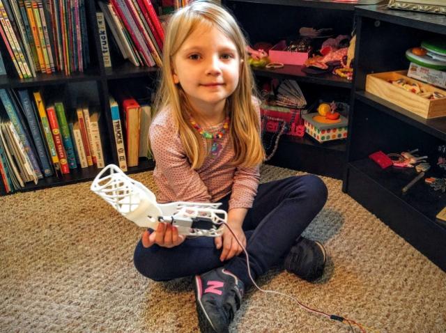 Программист напечатал на 3D-принтере реабилитационный бионический ортез для дочки