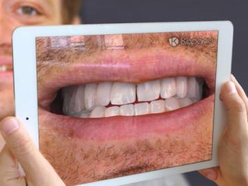 Швейцарский стартап Kapanu создал удобное стоматологическое AR-приложение