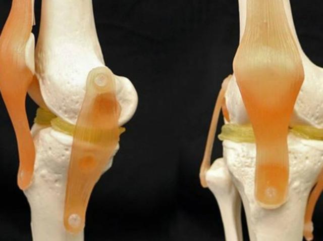 Учёные создали эффективный материал для 3D-имплантатов коленных хрящей