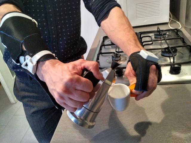 Украинец разработал 3D-печатный прибор для восстановления функции рук