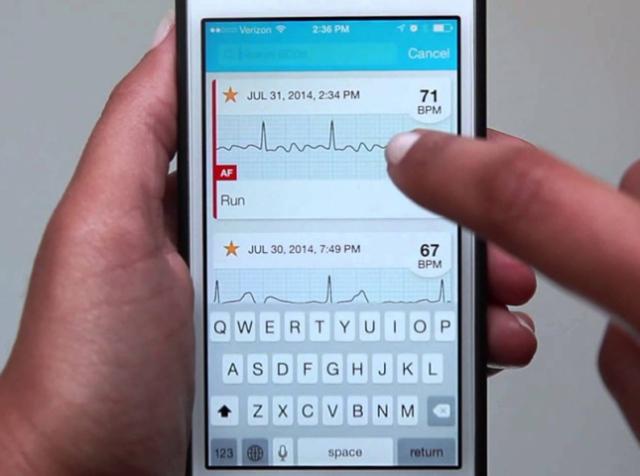Пристрій Kardia: діагностика роботи серця за півхвилини
