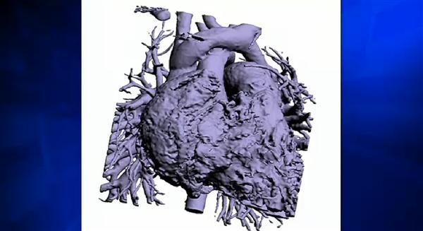Врачи использовали 3D-печать для успешного проведения операции на открытом сердце четырехлетней девочки