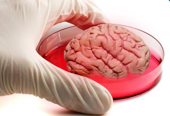 В Австралии на 3D-принтере напечатали живые мозговые клетки