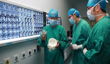Hospital used 3D printing to assist skull base tumor removal