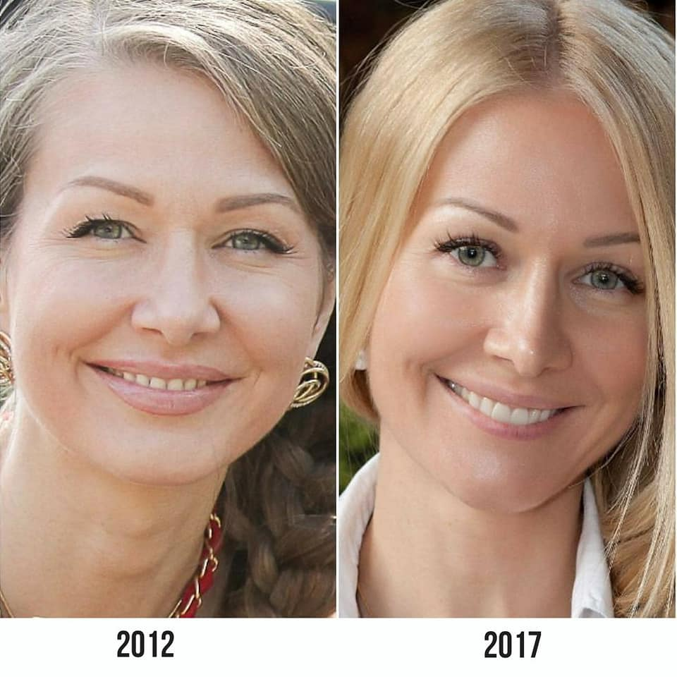"""You Can Restore, Improve, and Support Every Facial Area Using Exercises,"" Face Fitness Expert Elena Karkukli 1"