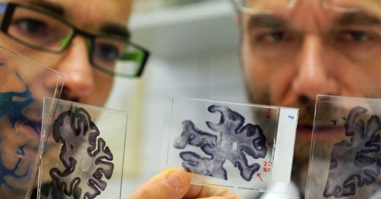 Новый подход к лечению болезни Альцгеймера Иннотек
