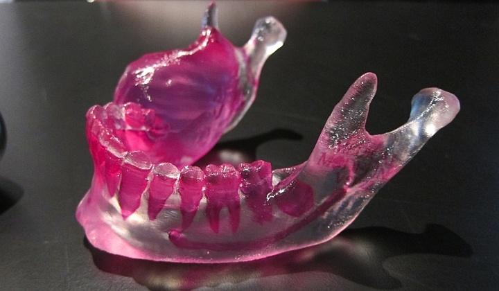 3Д печать используется в стоматологии и протезировании.